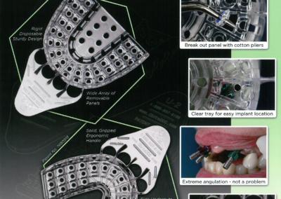 Implant Tray